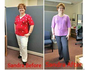 SandraBefore-After