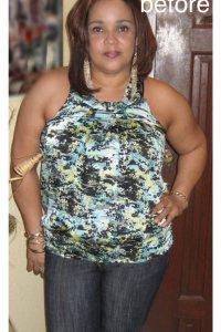 Testimonial Picture of Carol R. (1)