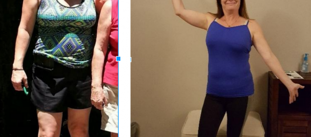 Brenda's Amazing Anti-Aging & Wellness Progress Photos